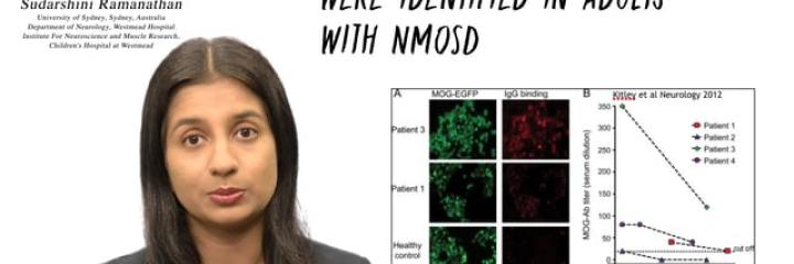 #MS Talks Episode 18: MOG antibody-associated demyelination